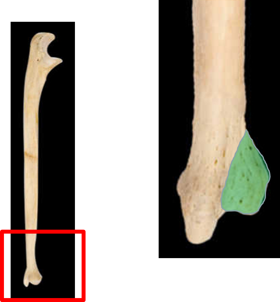 avanti ulna head prothesis At prosthetic orthotic designs, our clients' ambitions are our goals whether you are into mountain biking, surfing or cross country skiing, we want to help you do it our team is highly motivated to work with you to design a prosthesis or orthosis to work for you.